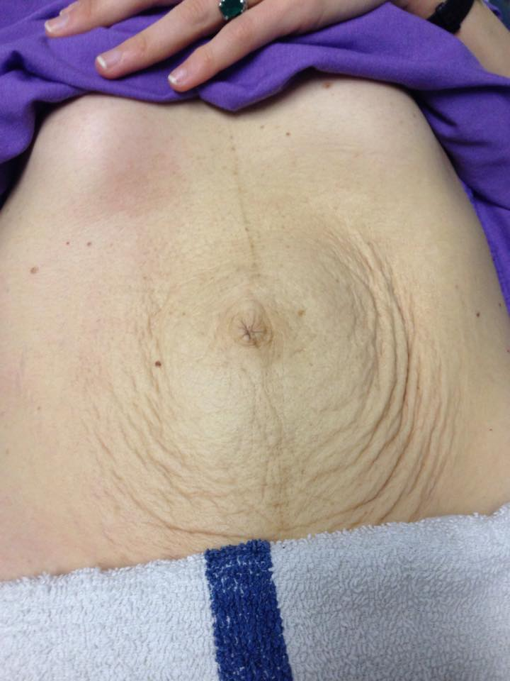 Taping Techniques Effective For Improving Diastasis Recti