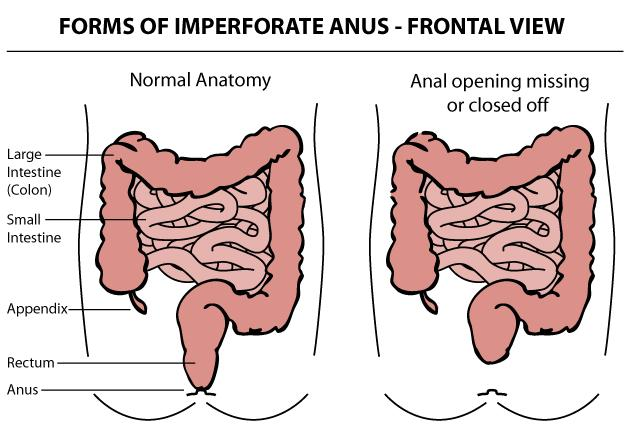 Forms of Imperforate Anus - Frontal View