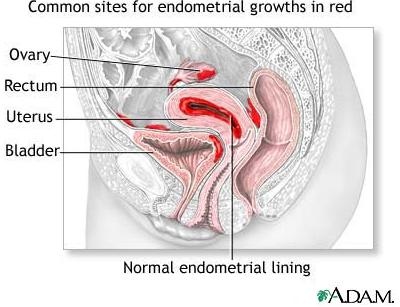 Endometriosis - Common Sites For Endometrial Growths